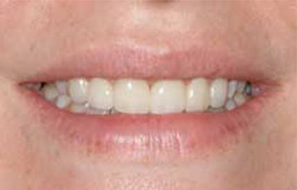 Gap closed between front teeth after cosmetic dentistry