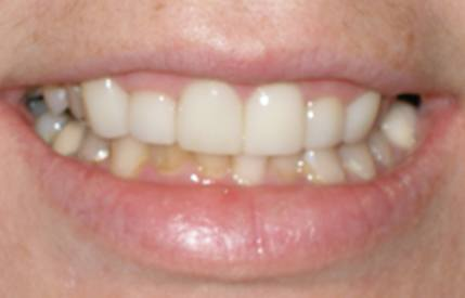 Healthy and beautifully repaired smile