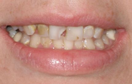 Broken and severely decayed teeth
