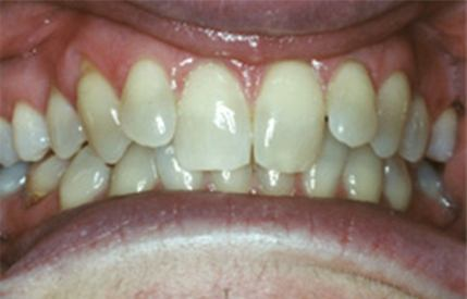 Yellow and stained teeth before teeth whitening