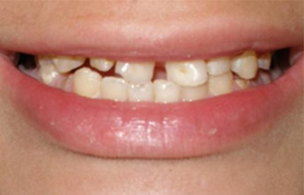 Decayed and damaged smile before restorative dentistry
