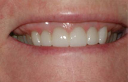 Healthy beautiful smile after cosmetic dentistry