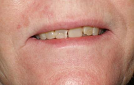 Yellow and damaged smile before cosmetic dentistry