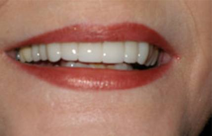 Perfect smile after teeth whitening and cosmetic dentistry
