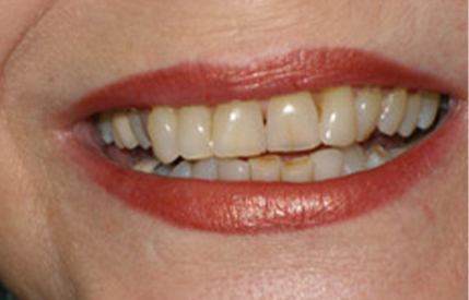 Severely yellowed teeth before teeth whitening and cosmetic dentistry