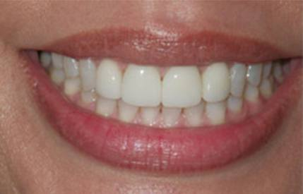 Gorgeous smile after Invisalign