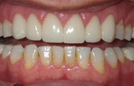 Healthy bright white smile after dental treatment
