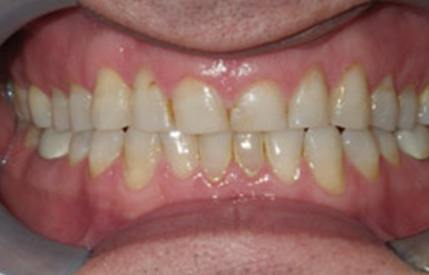 Discolored and decayed teeth