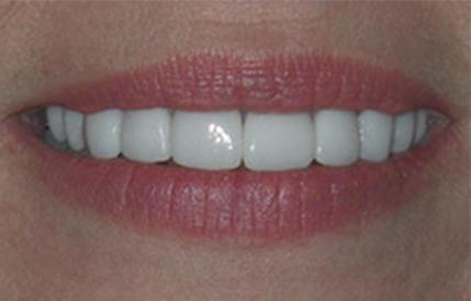 Bright white smile after teeth whitening