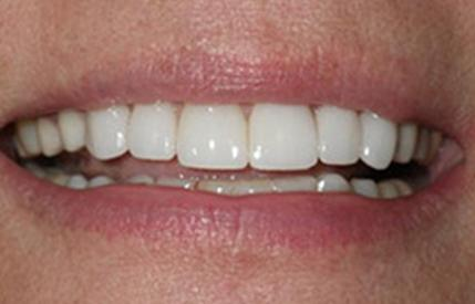 Healthy white smile after cosmetic dentistry