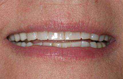 Worn discolored smile before cosmetic dentistry