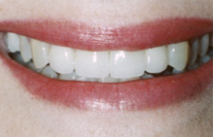 Gorgeous white smile after cosmetic dentistry