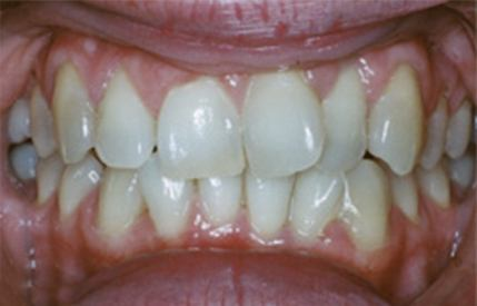 Discolored smile before cosmetic dentistry