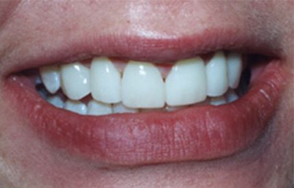 Beautiful smile after Invisalign clear braces and cosmetic dentistry