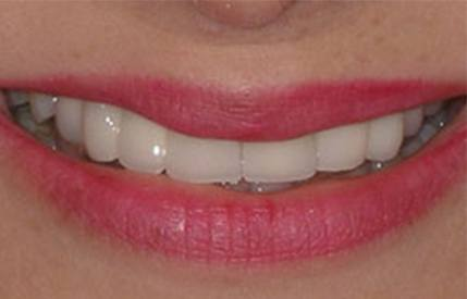 Healthy aligned smile after cosmetic dentistry