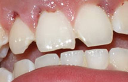 Cracked and damaged teeth