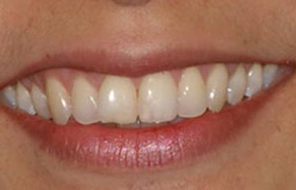 Discolored smile before teeth whitening