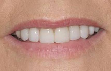 Bright smile after teeth whitening