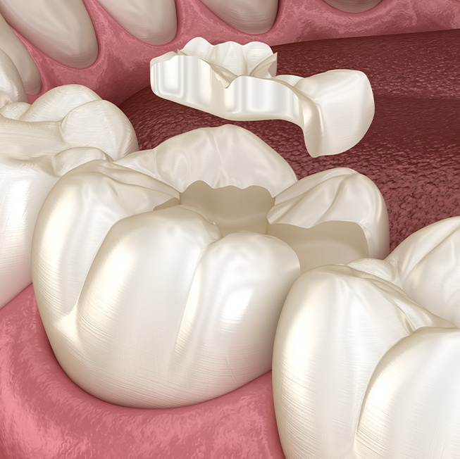 Animated tooth colored filling placement