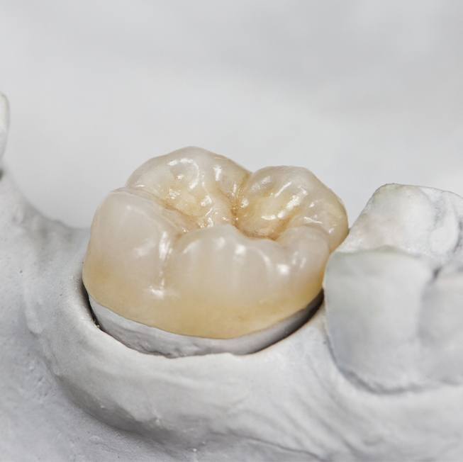 Metal free dental restoration on smile model