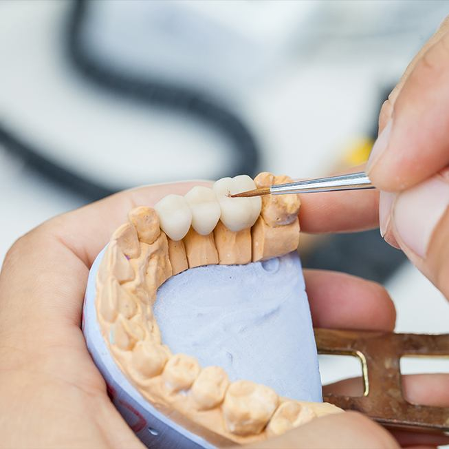 Dental lab technicians crafting dental restorations