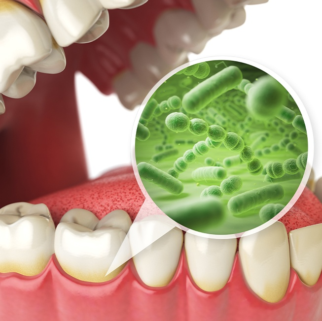 Animated smile with enlarged gum disease causing bacteria